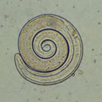 A Trichinella larvae, via Wikipedia.
